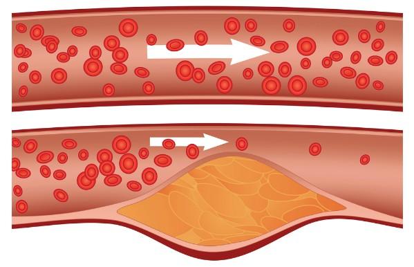 holesterīna norma